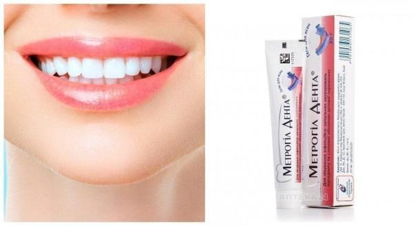 Метрогил Дента — эффективный препарат для лечения дефектов слизистой оболочки рта: краткий обзор препарата от стоматолога